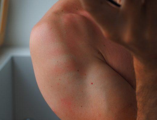 Quel traitement naturel de la dermatite atopique ?